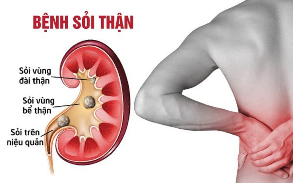 Một số triệu chứng bệnh sỏi thận phổ biến bạn cần lưu ý