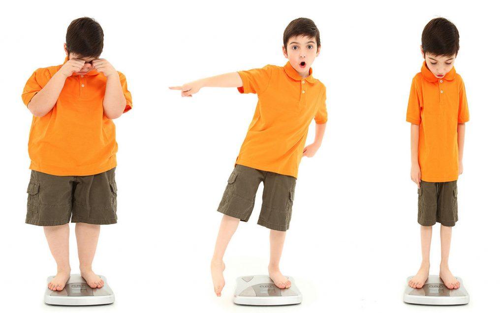 Lưu ý quan trọng về chế độ dinh dưỡng cho trẻ béo phì