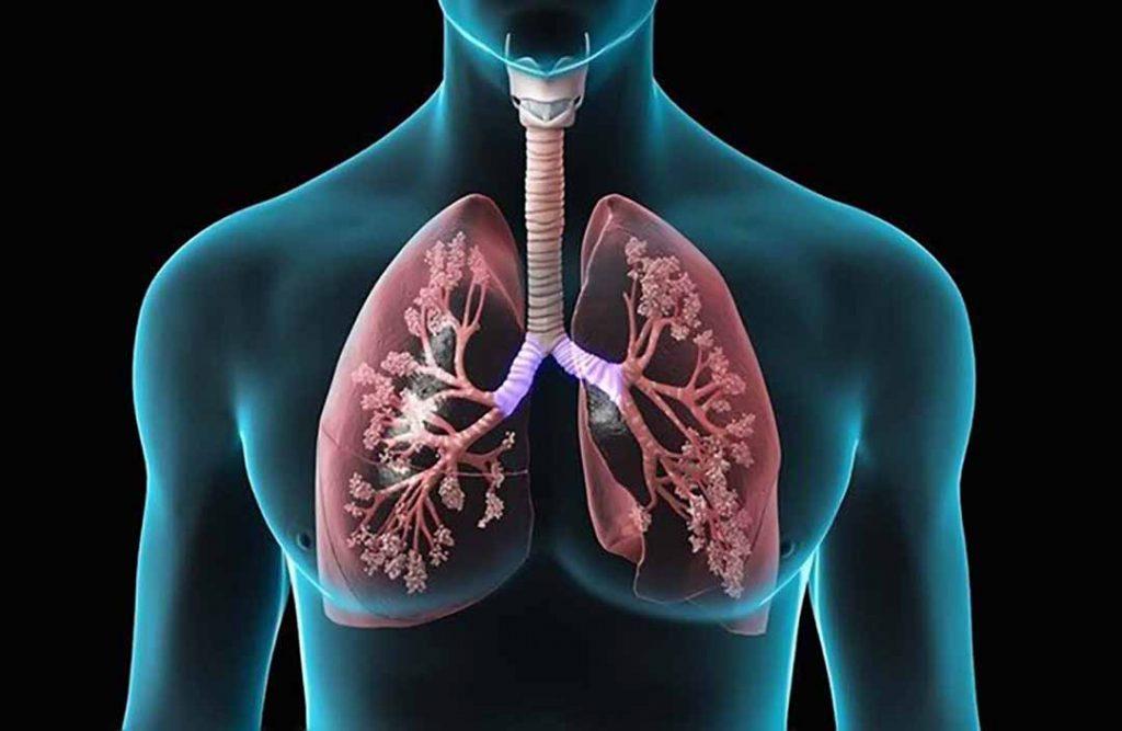 Những thông tin cần biết về triệu chứng của căn bệnh lao phổi